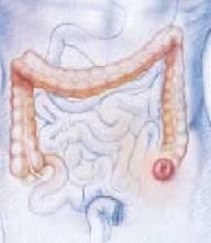 colostoma-sigmoidalis